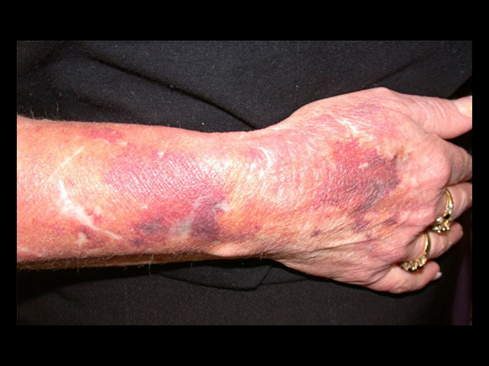 Skin atrophy — The skin usually atrophies, the stratum corneum is thinned, and there is loss of subcutaneous fat to a sufficient degree that subcutaneous blood vessels may be seen [30].